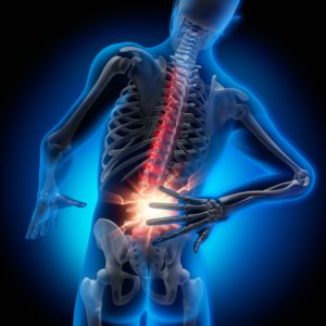 変形性腰痛